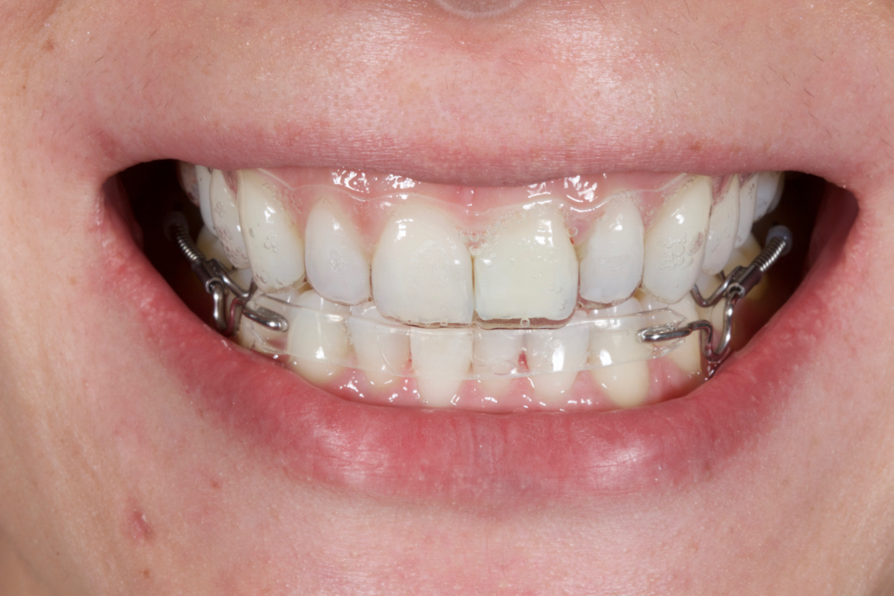 Inman Aligner Case of the Month