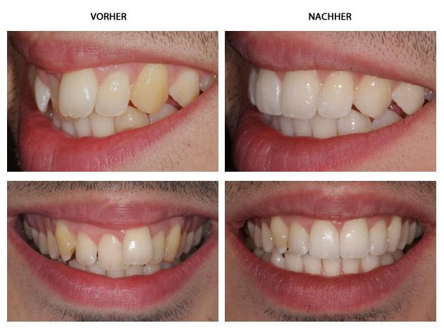 models mit schiefen zähnen