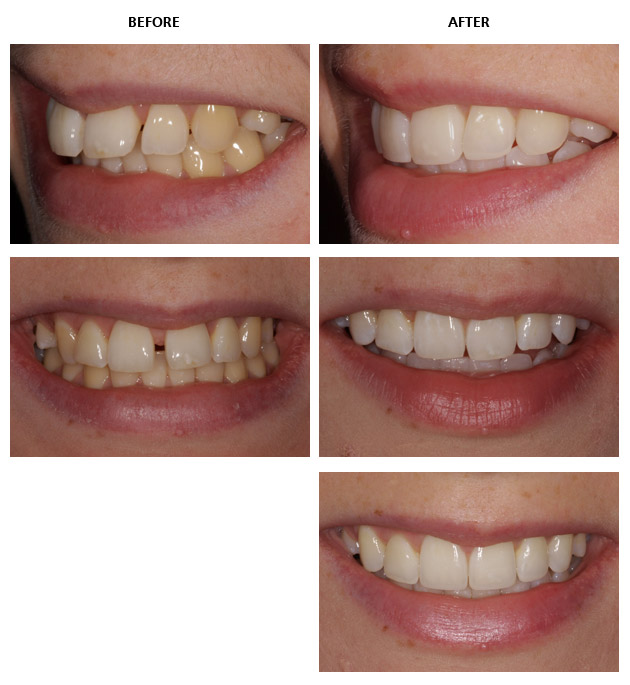 Inman aligner before and after pictures inman aligner align bleach bond abb solutioingenieria Gallery
