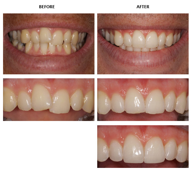Inman aligner before and after pictures inman aligner crowded and uneven teeth solutioingenieria Choice Image