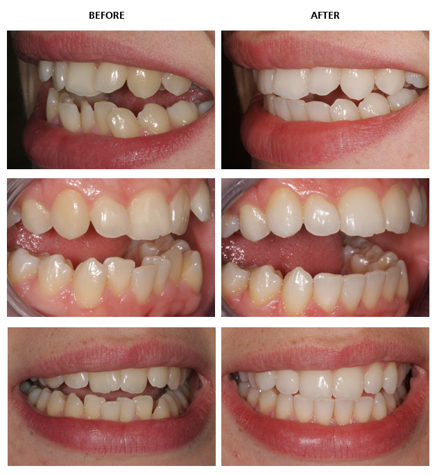 Inman Aligner Before And After Pictures Inman Aligner